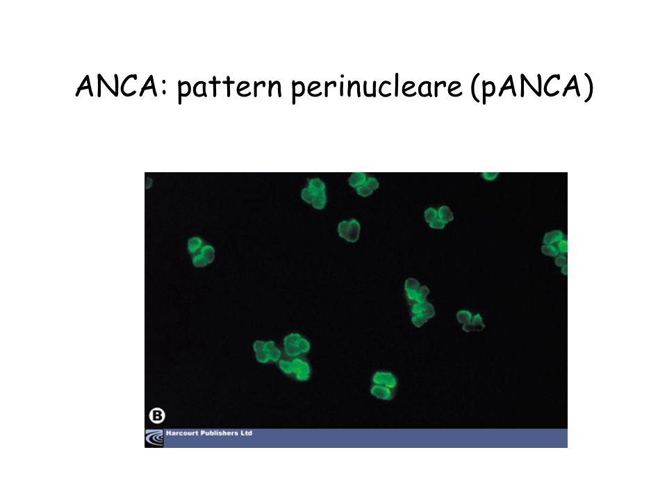 ANCA: pattern perinucleare (pANCA)