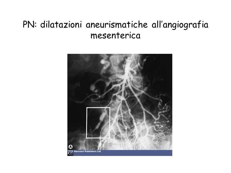 PN: dilatazioni aneurismatiche all'angiografia mesenterica