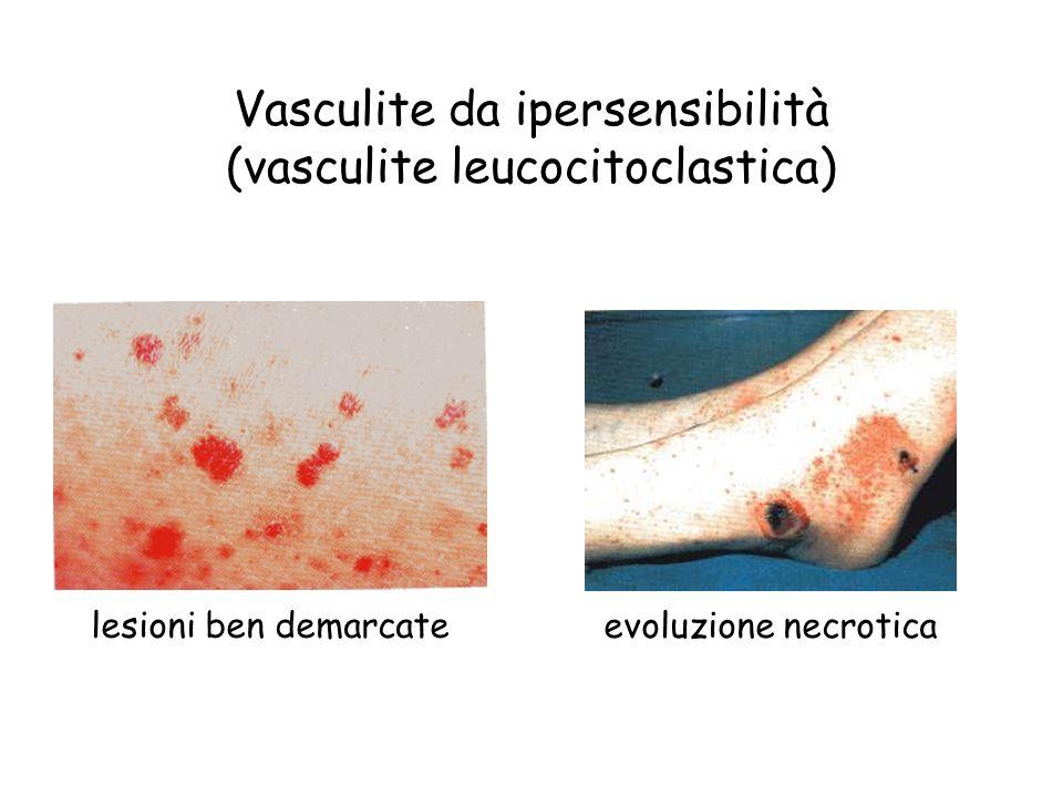 Vasculite da ipersensibilità (vasculite leucocitoclastica)