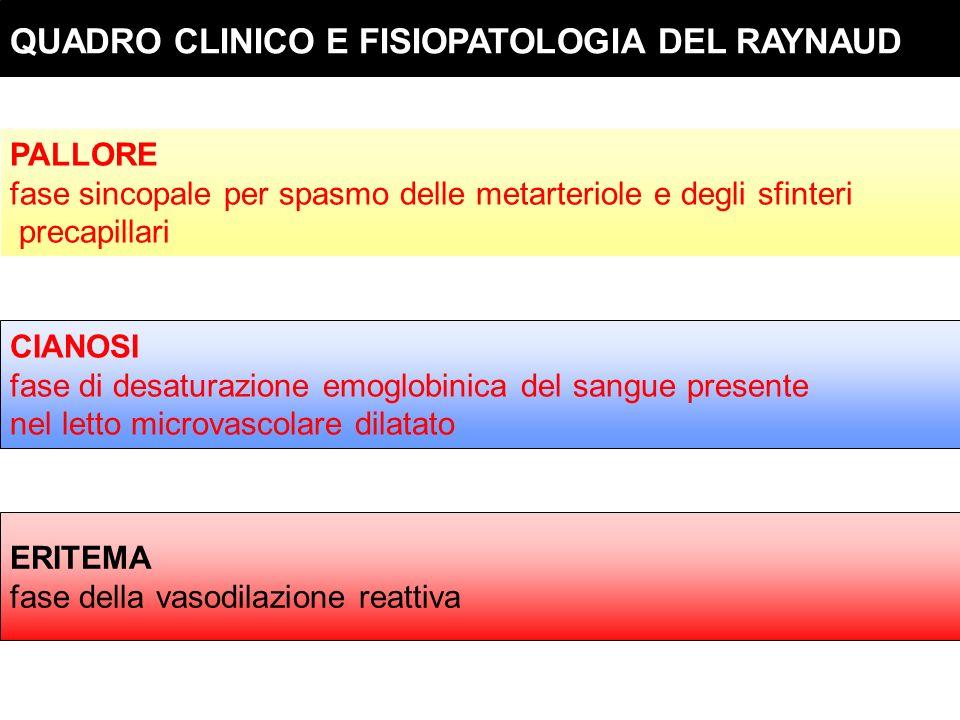 QUADRO CLINICO E FISIOPATOLOGIA DEL RAYNAUD