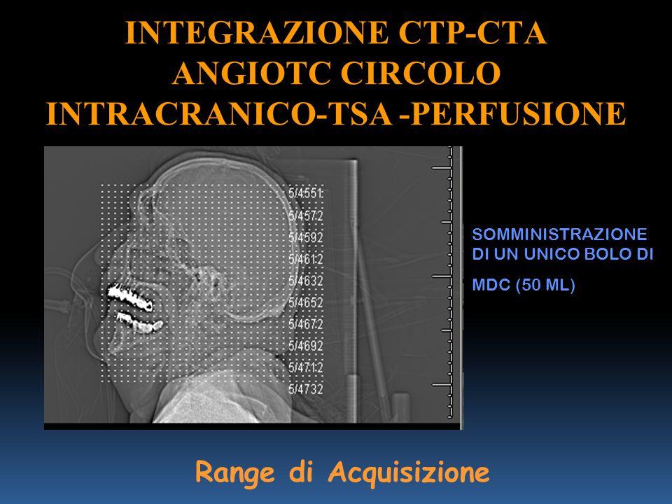 INTEGRAZIONE CTP-CTA ANGIOTC CIRCOLO INTRACRANICO-TSA -PERFUSIONE