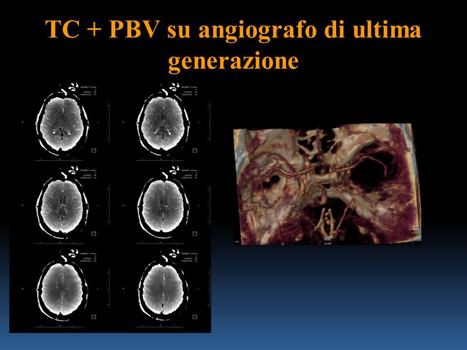 TC + PBV su angiografo di ultima generazione