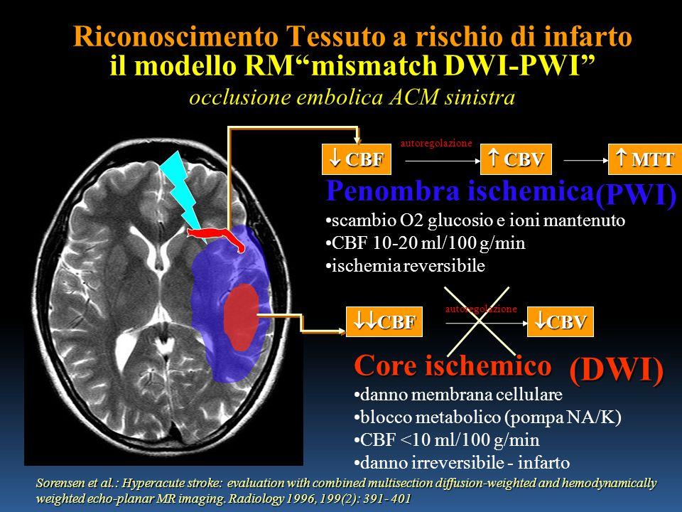 Riconoscimento Tessuto a rischio di infarto il modello RM mismatch DWI-PWI occlusione embolica ACM sinistra