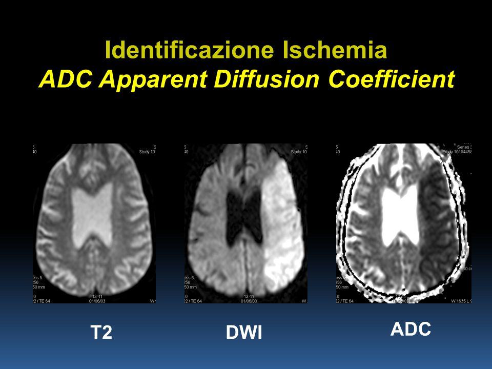 Identificazione Ischemia ADC Apparent Diffusion Coefficient