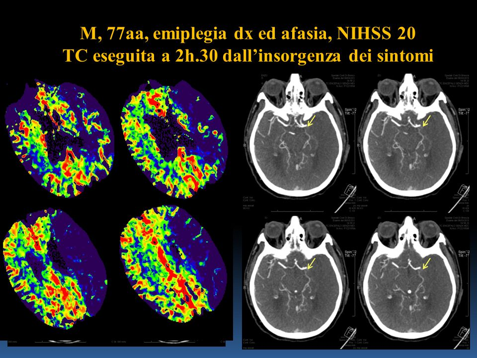 M, 77aa, emiplegia dx ed afasia, NIHSS 20 TC eseguita a 2h