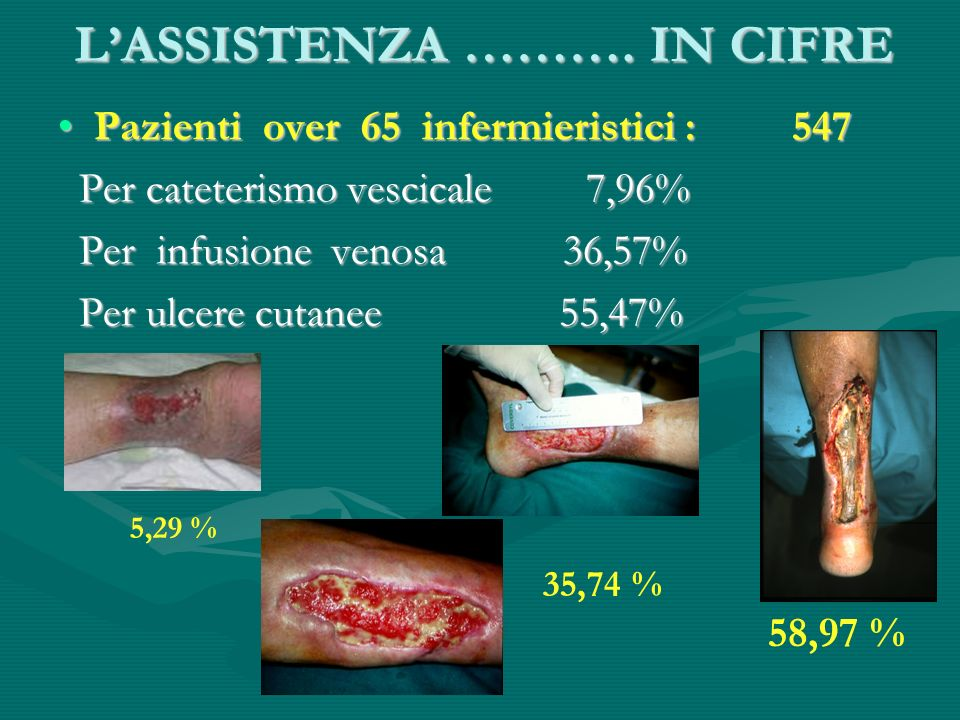 L'ASSISTENZA ………. IN CIFRE