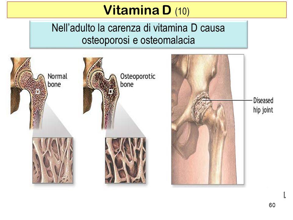 Nell'adulto la carenza di vitamina D causa osteoporosi e osteomalacia