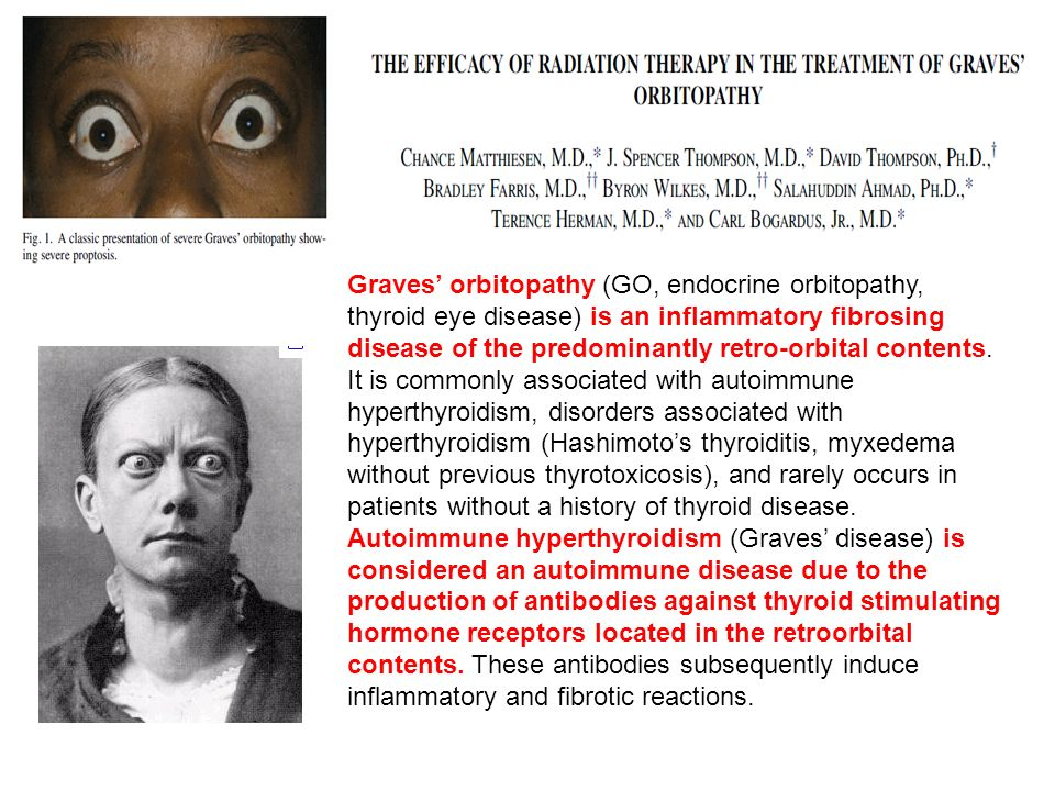 Graves' orbitopathy (GO, endocrine orbitopathy, thyroid eye disease) is an inflammatory fibrosing disease of the predominantly retro-orbital contents. It is commonly associated with autoimmune hyperthyroidism, disorders associated with hyperthyroidism (Hashimoto's thyroiditis, myxedema without previous thyrotoxicosis), and rarely occurs in patients without a history of thyroid disease.