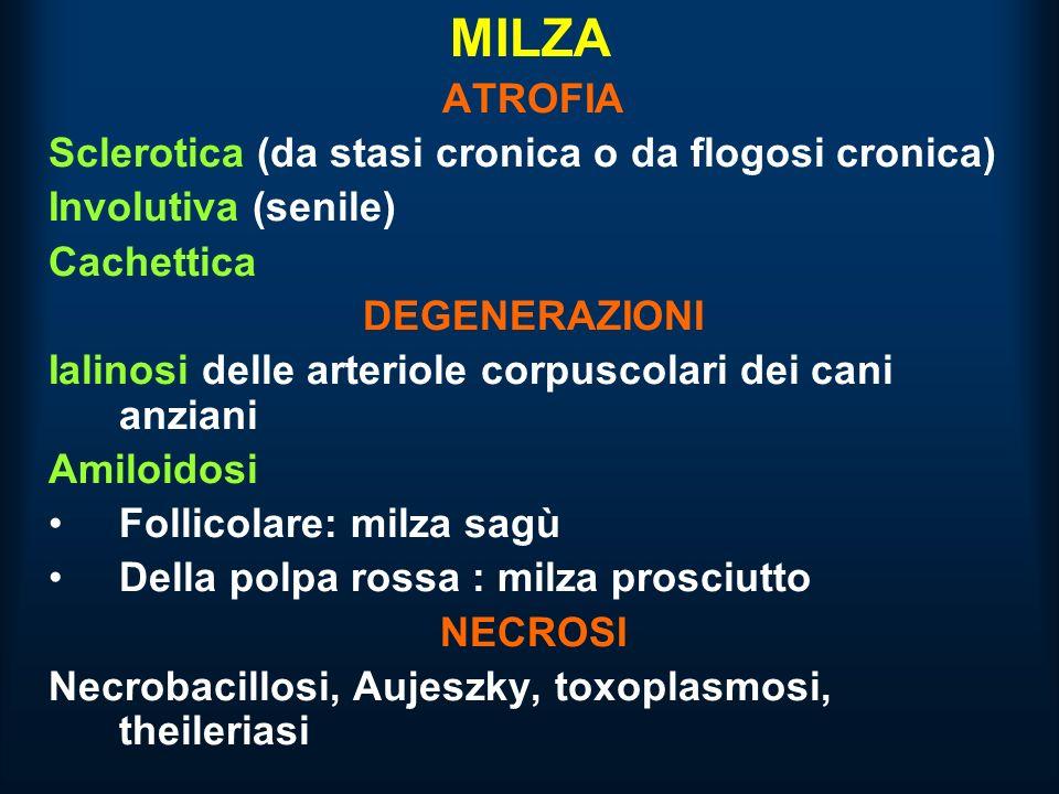 MILZA ATROFIA Sclerotica (da stasi cronica o da flogosi cronica)