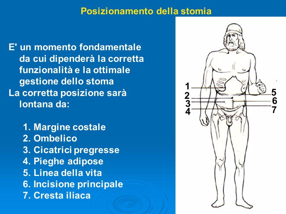Posizionamento della stomia