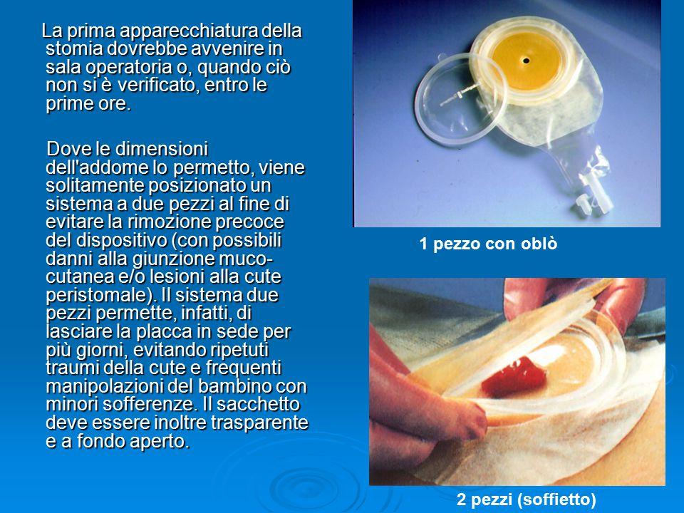 La prima apparecchiatura della stomia dovrebbe avvenire in sala operatoria o, quando ciò non si è verificato, entro le prime ore.