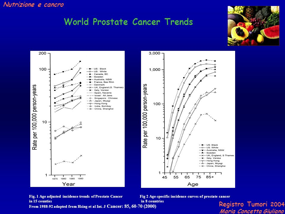 World Prostate Cancer Trends