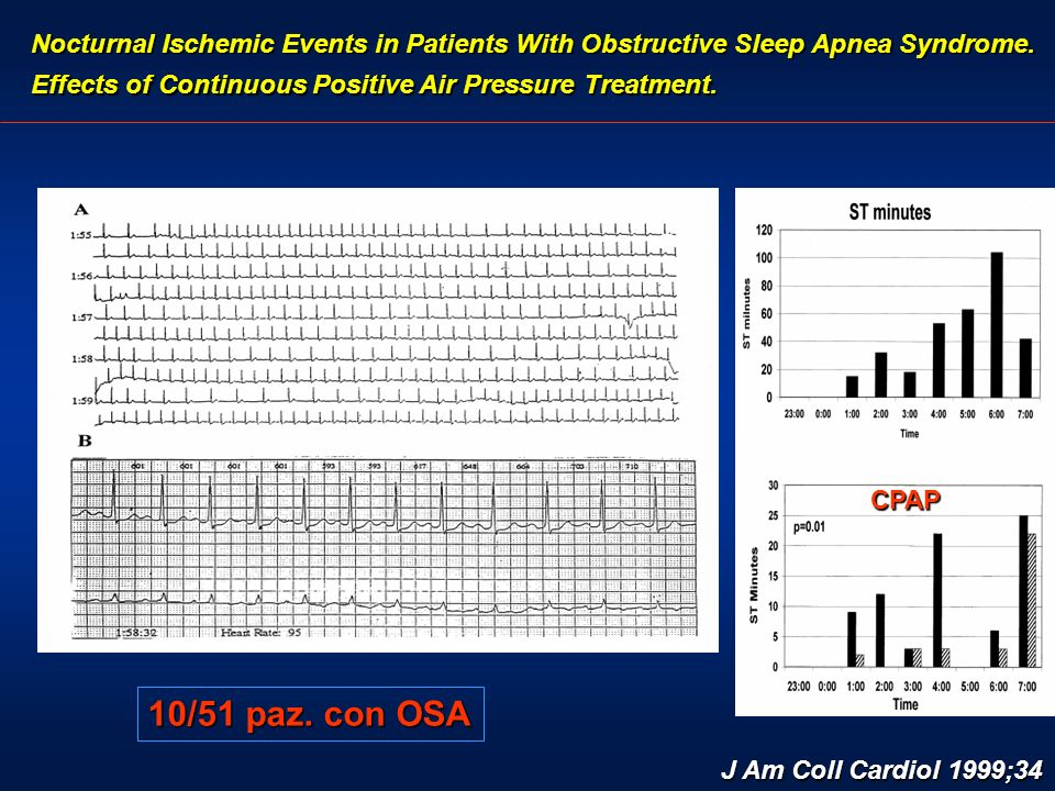 Nocturnal Ischemic Events in Patients With Obstructive Sleep Apnea Syndrome.