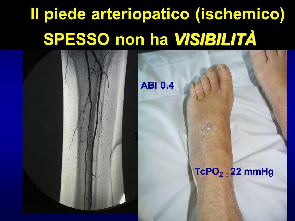 Il piede arteriopatico (ischemico) SPESSO non ha VISIBILITÀ