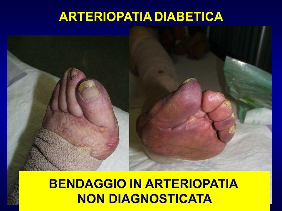 ARTERIOPATIA DIABETICA BENDAGGIO IN ARTERIOPATIA