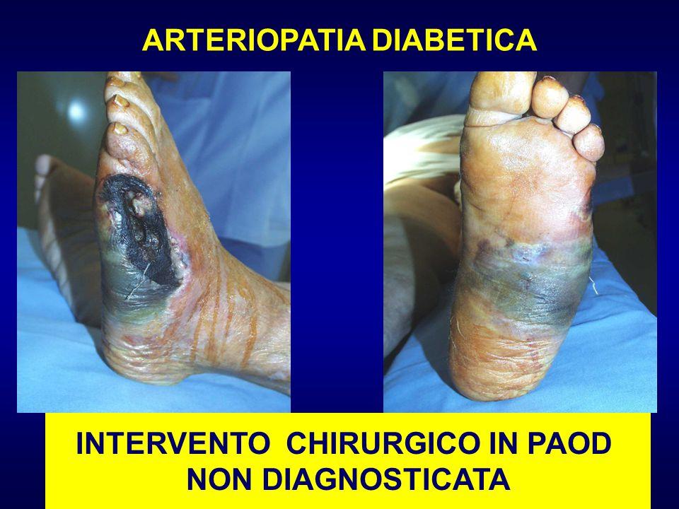ARTERIOPATIA DIABETICA INTERVENTO CHIRURGICO IN PAOD
