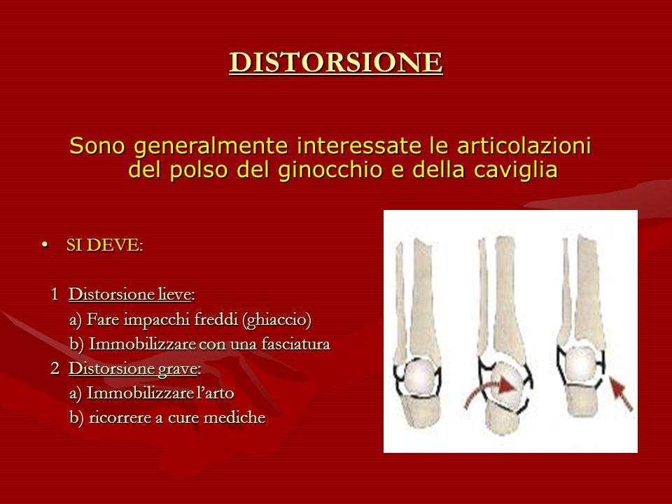 DISTORSIONE Sono generalmente interessate le articolazioni del polso del ginocchio e della caviglia.