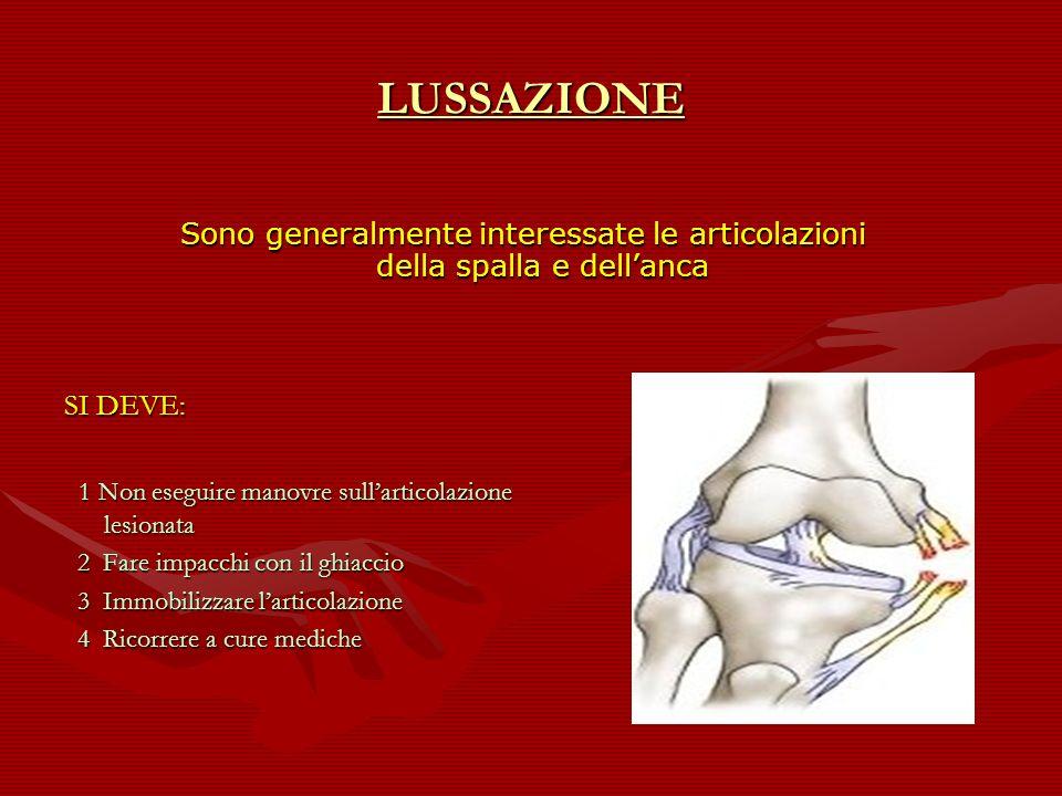 LUSSAZIONESono generalmente interessate le articolazioni della spalla e dell'anca. SI DEVE: 1 Non eseguire manovre sull'articolazione lesionata.