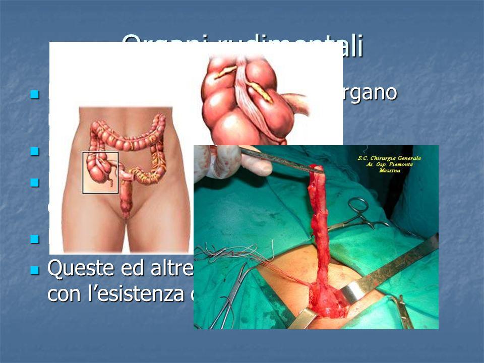 Organi rudimentali L'appendice vermiforme è un organo rudimentale