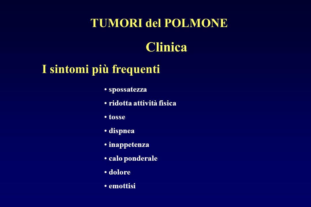Clinica TUMORI del POLMONE I sintomi più frequenti spossatezza
