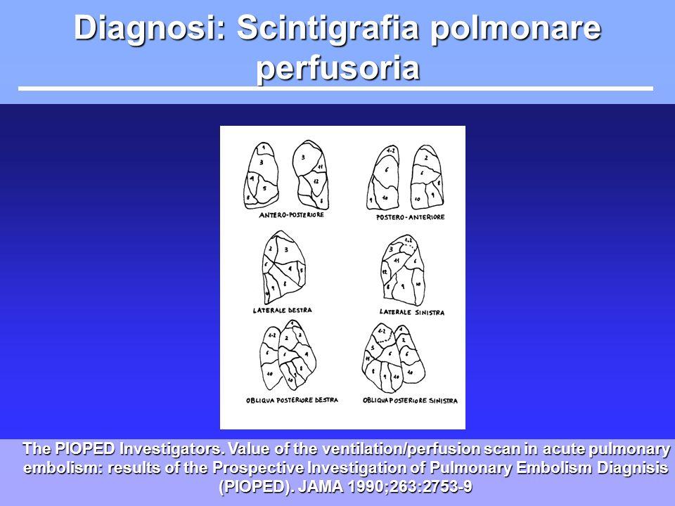 Diagnosi: Scintigrafia polmonare perfusoria
