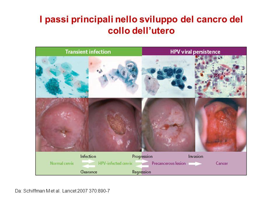 I passi principali nello sviluppo del cancro del collo dell'utero