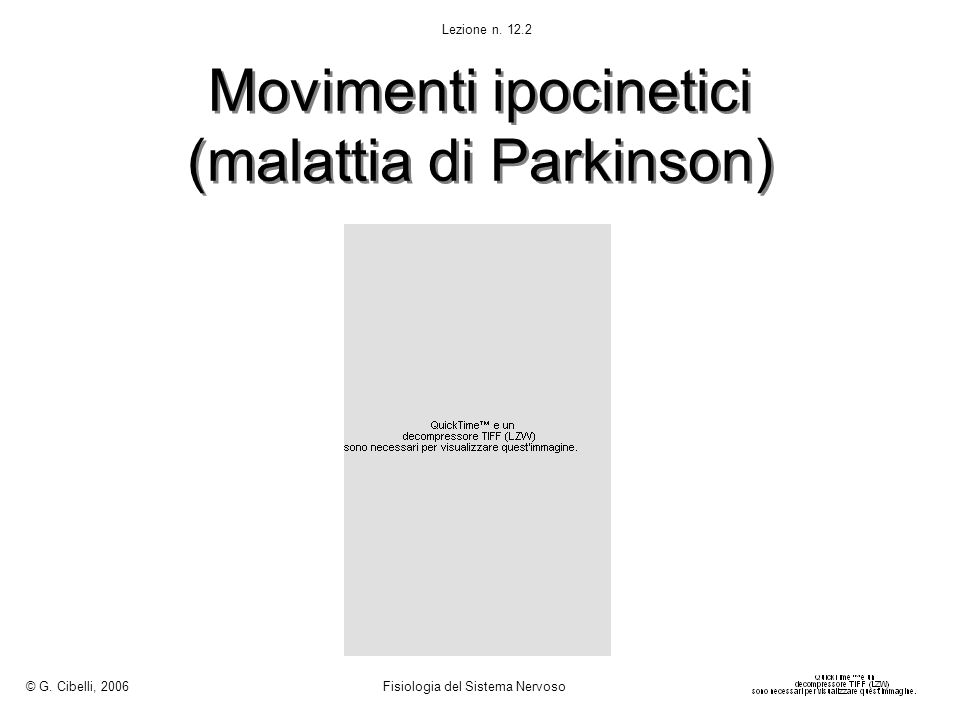Movimenti ipocinetici (malattia di Parkinson)