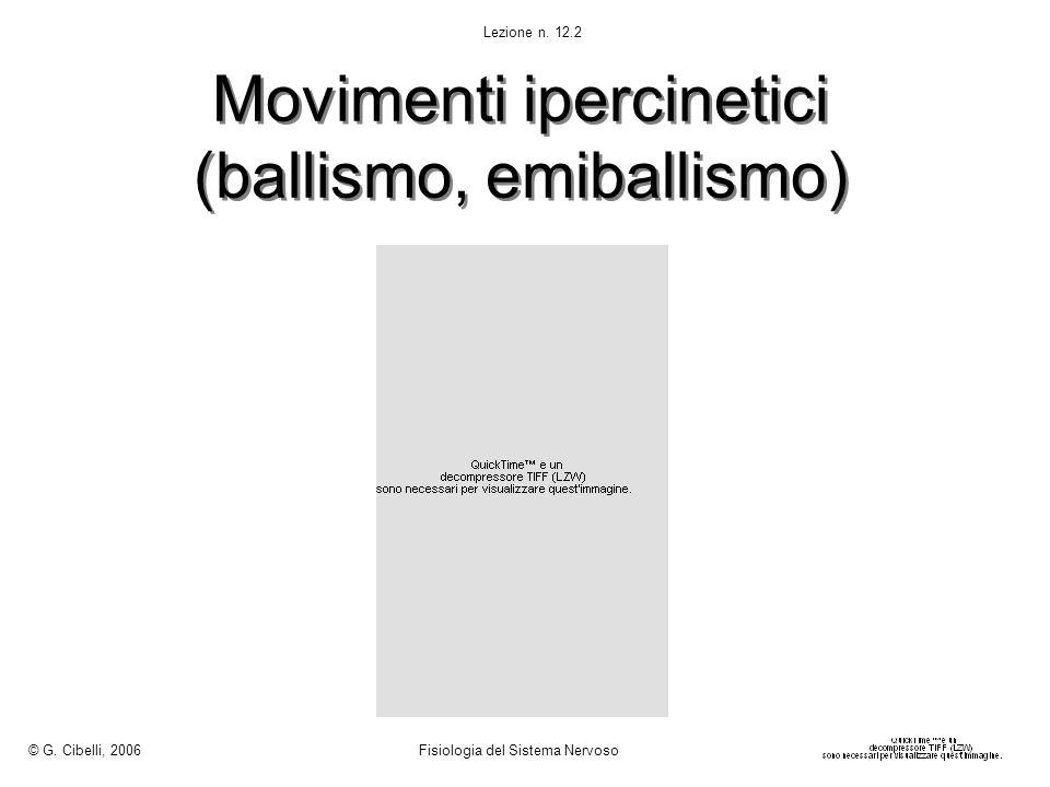 Movimenti ipercinetici (ballismo, emiballismo)