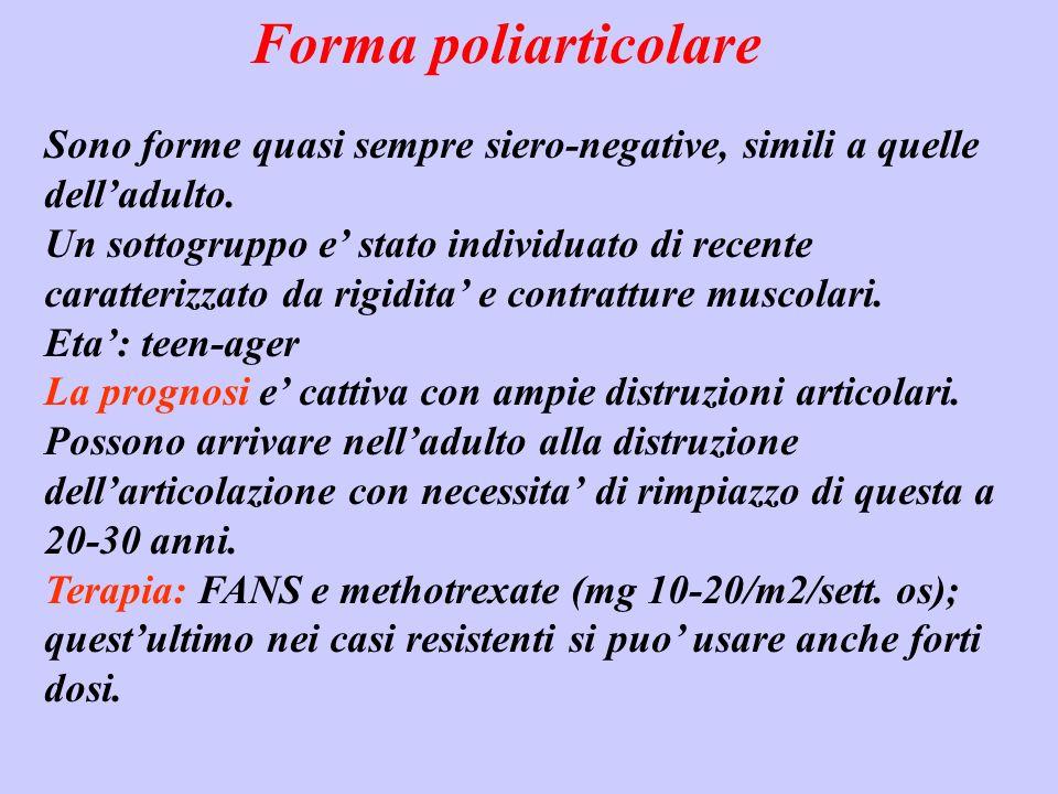 Forma poliarticolare Sono forme quasi sempre siero-negative, simili a quelle dell'adulto.