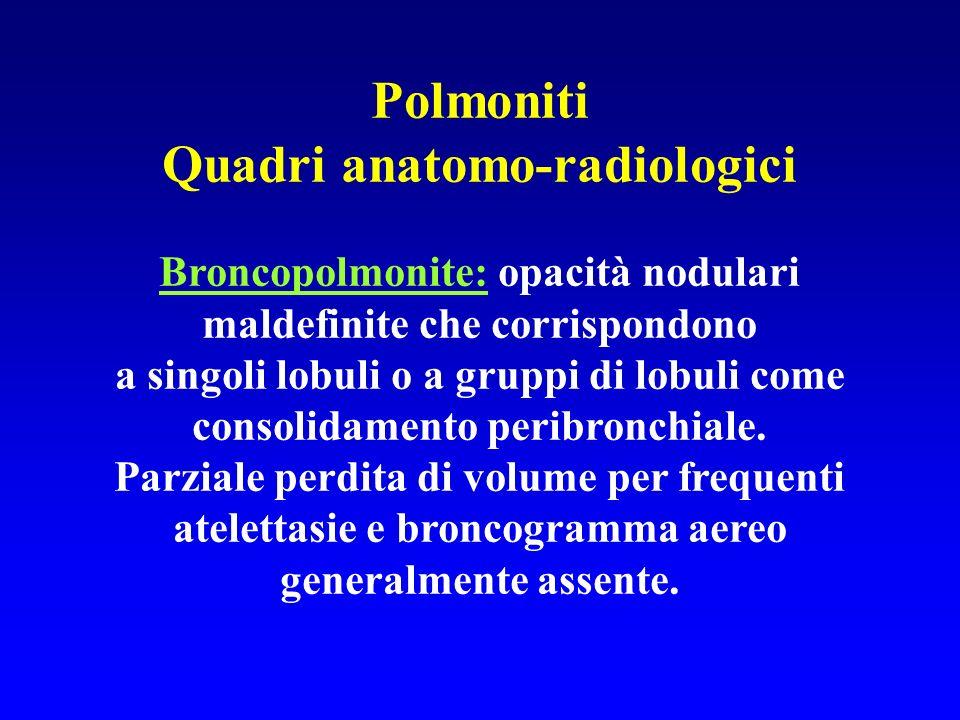 Polmoniti Quadri anatomo-radiologici
