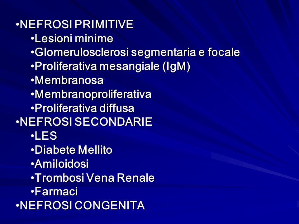 NEFROSI PRIMITIVE Lesioni minime. Glomerulosclerosi segmentaria e focale. Proliferativa mesangiale (IgM)