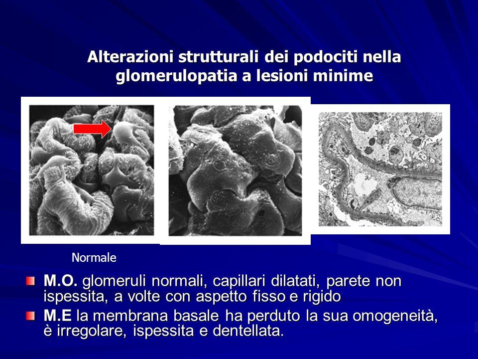 Alterazioni strutturali dei podociti nella glomerulopatia a lesioni minime