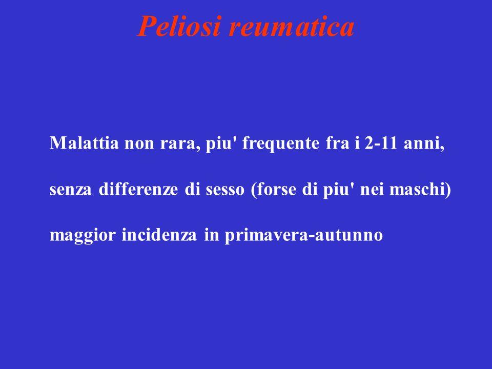 Peliosi reumatica Malattia non rara, piu frequente fra i 2-11 anni,