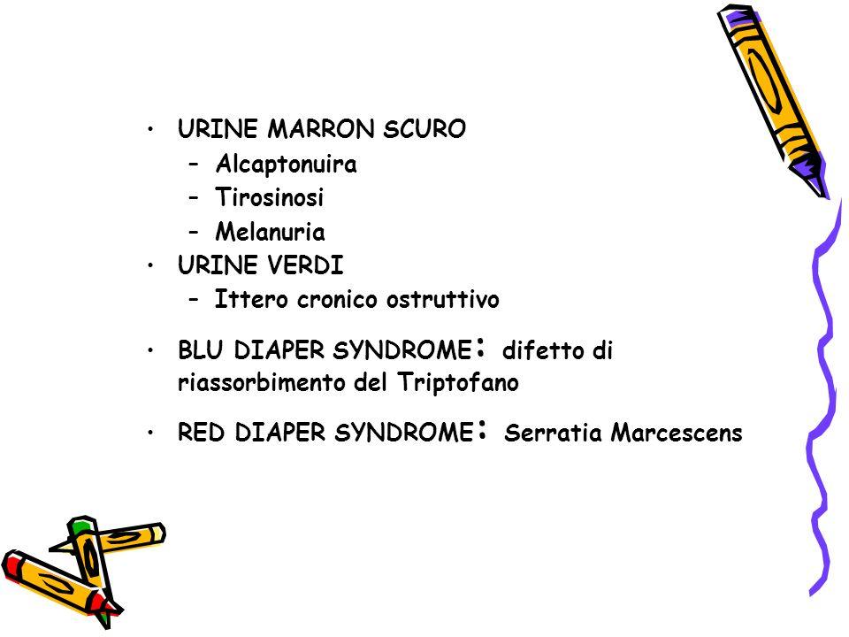 URINE MARRON SCURO Alcaptonuira. Tirosinosi. Melanuria. URINE VERDI. Ittero cronico ostruttivo.