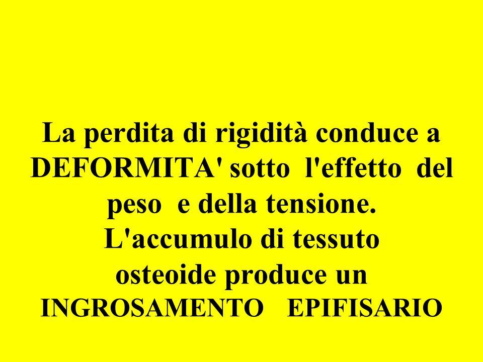 La perdita di rigidità conduce a DEFORMITA sotto l effetto del peso e della tensione.