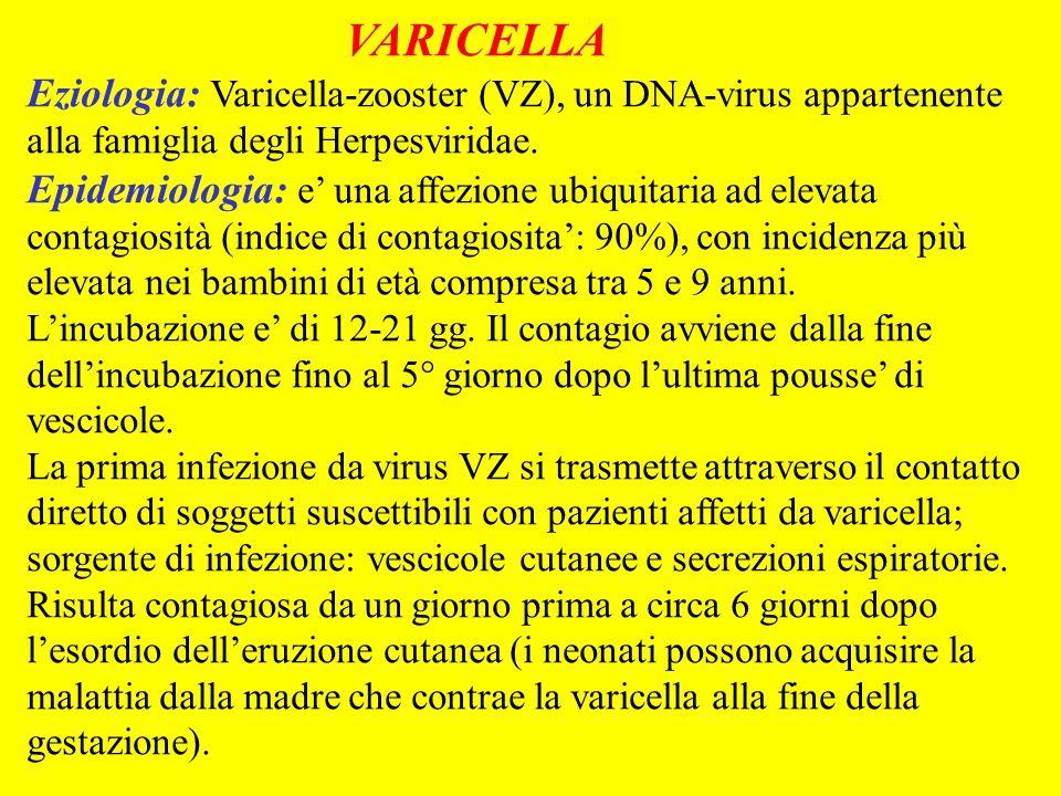 VARICELLA Eziologia: Varicella-zooster (VZ), un DNA-virus appartenente alla famiglia degli Herpesviridae.