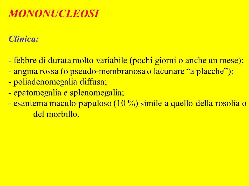 MONONUCLEOSI Clinica: