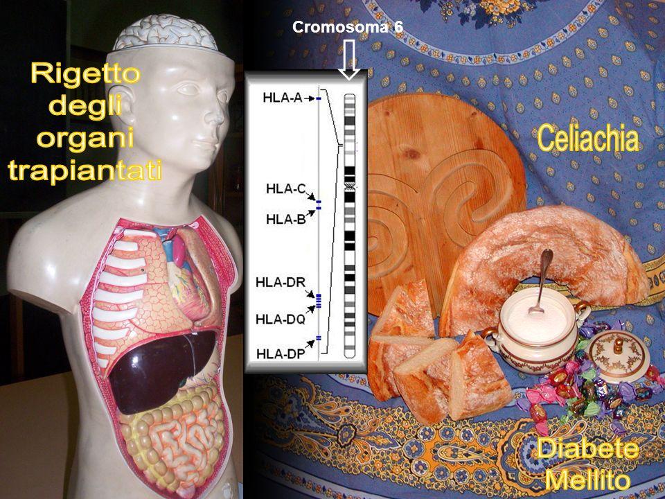 Rigetto degli organi trapiantati Celiachia Diabete Mellito Cromosoma 6