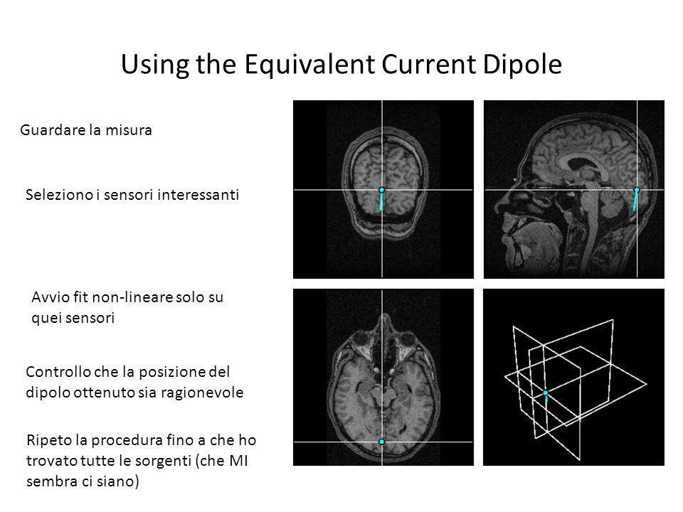 Using the Equivalent Current Dipole