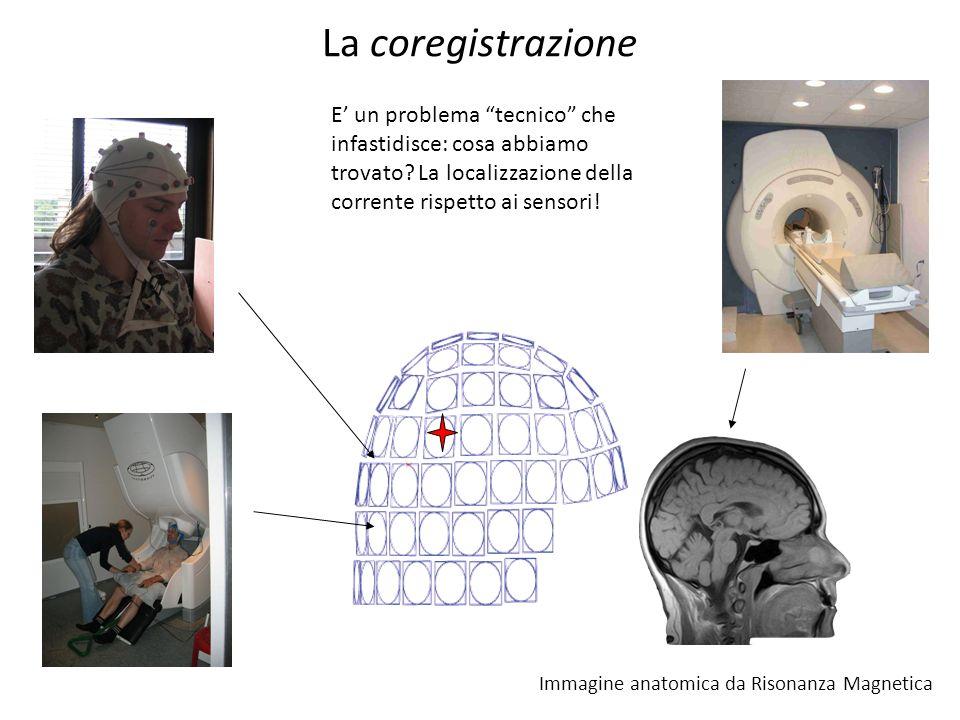 La coregistrazione E' un problema tecnico che infastidisce: cosa abbiamo trovato La localizzazione della corrente rispetto ai sensori!