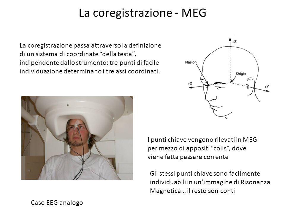 La coregistrazione - MEG