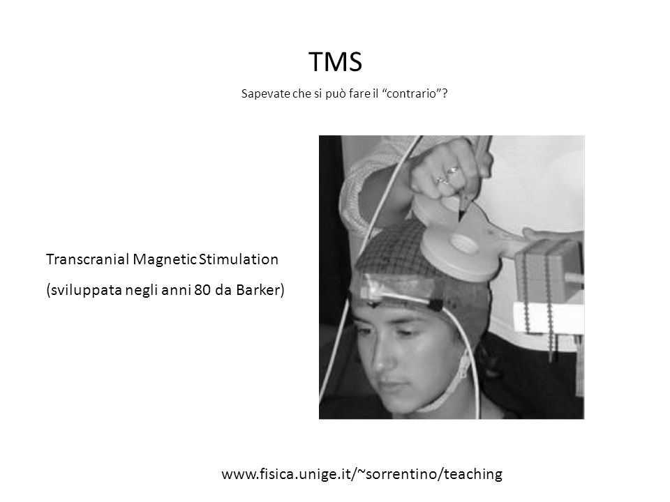 TMS Transcranial Magnetic Stimulation