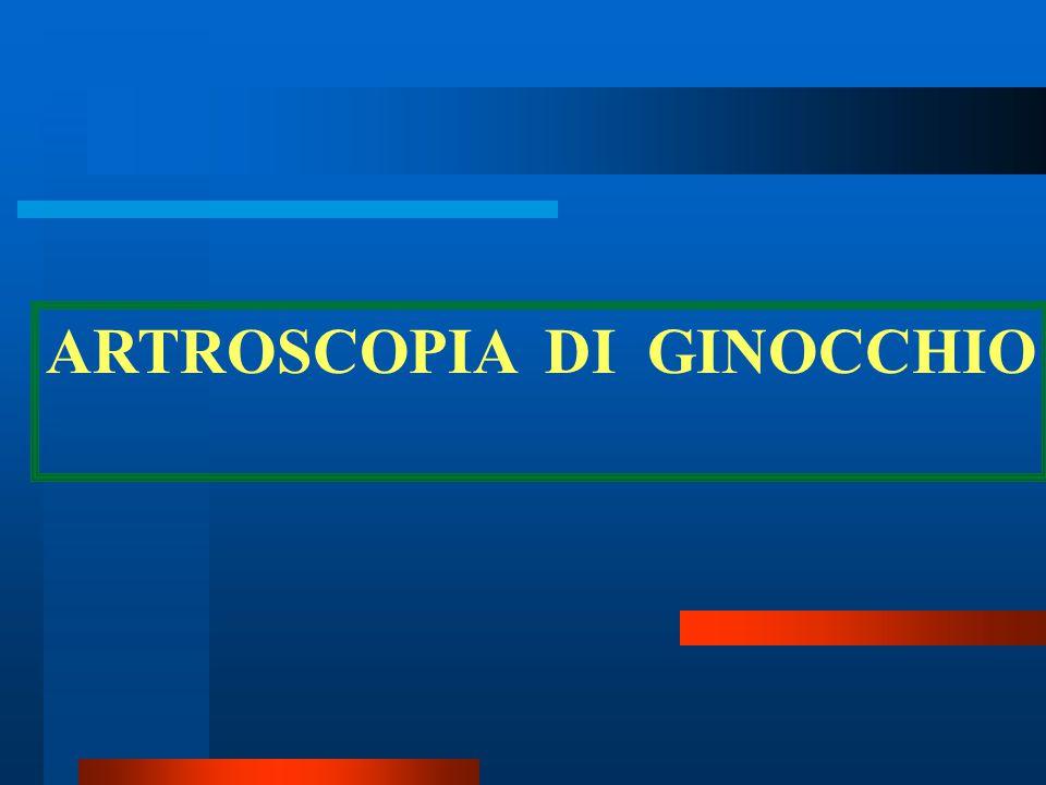 ARTROSCOPIA DI GINOCCHIO
