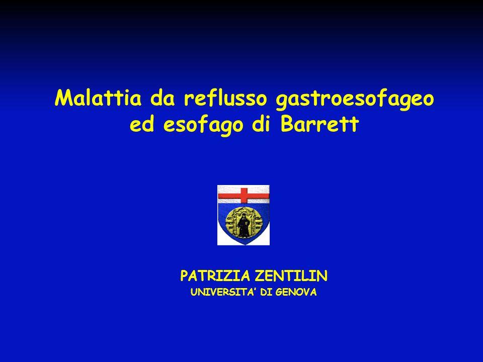 Malattia da reflusso gastroesofageo ed esofago di Barrett
