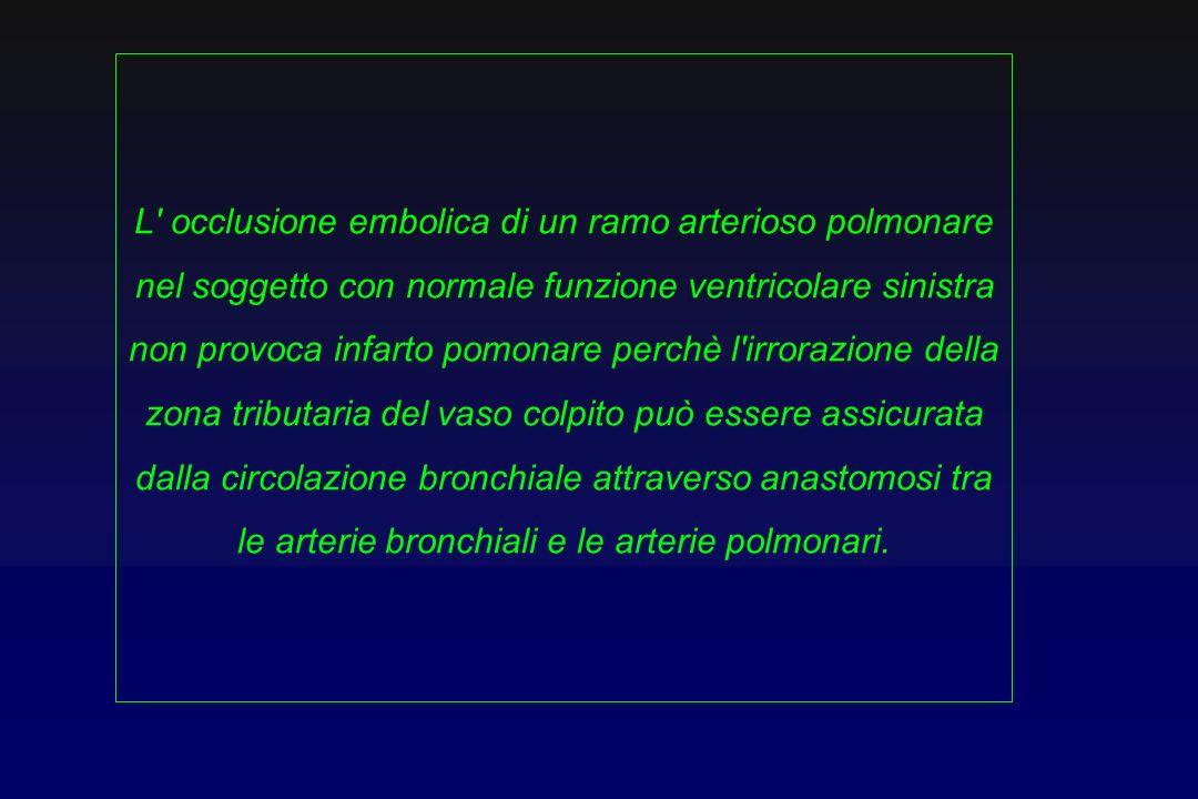 L occlusione embolica di un ramo arterioso polmonare