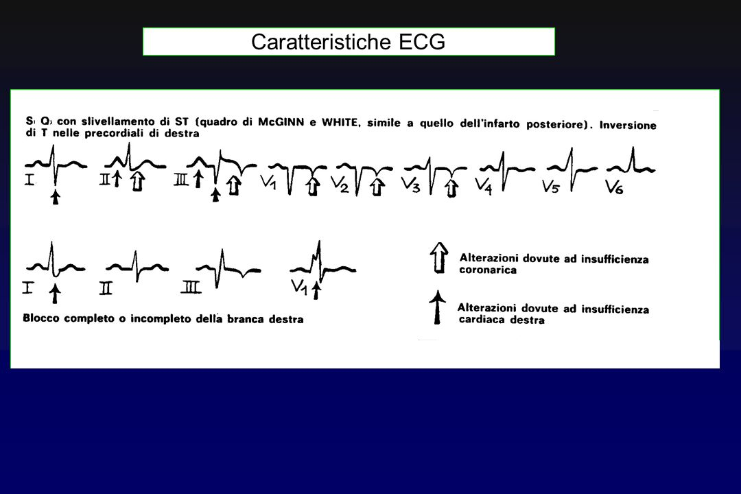 Caratteristiche ECG