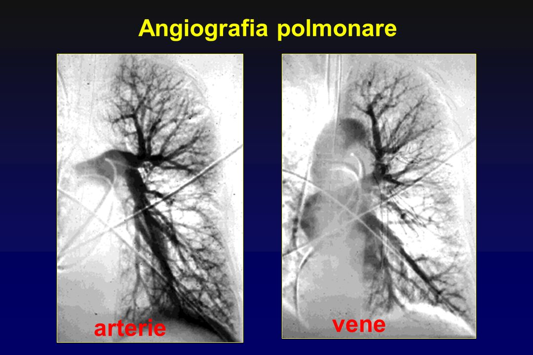 Angiografia polmonare