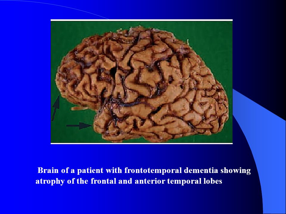 Brain of a patient with frontotemporal dementia showing atrophy of the frontal and anterior temporal lobes