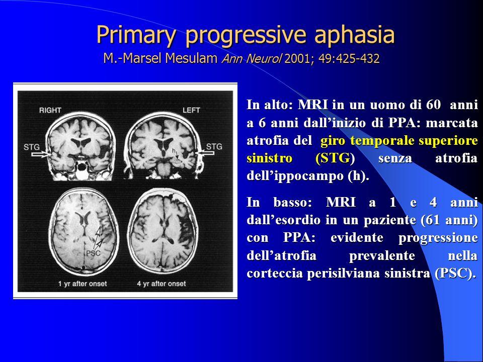 Primary progressive aphasia M