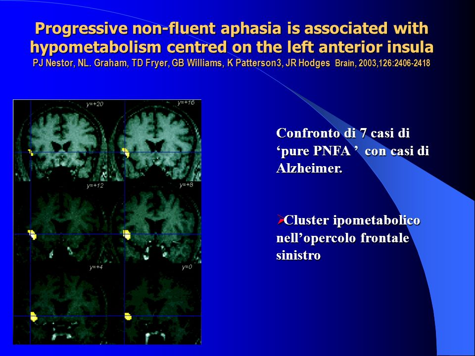 Progressive non-fluent aphasia is associated with hypometabolism centred on the left anterior insula PJ Nestor, NL. Graham, TD Fryer, GB Williams, K Patterson3, JR Hodges Brain, 2003,126: